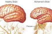 Científicos descubren cómo prevenir el Alzheimer