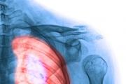 Síntomas del cáncer de pulmón que debes conocer