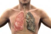 La nueva y peligrosa amenaza de los cigarrillos electrónicos