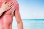 Sufrir quemaduras solares antes de los 12 años aumenta 70% el riesgo de melanoma
