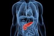 Tumores neuroendocrinos: un reto para el diagnóstico